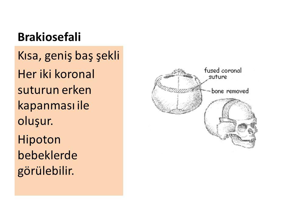 Brakiosefali Kısa, geniş baş şekli. Her iki koronal suturun erken kapanması ile oluşur.