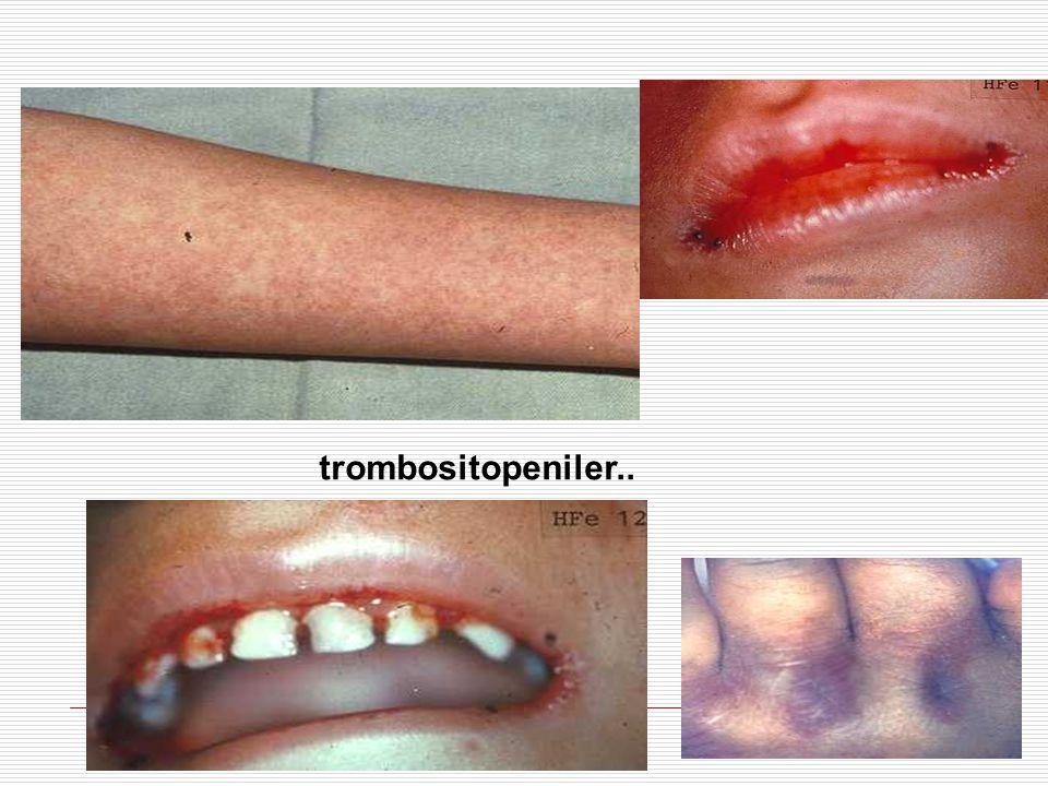 trombositopeniler..