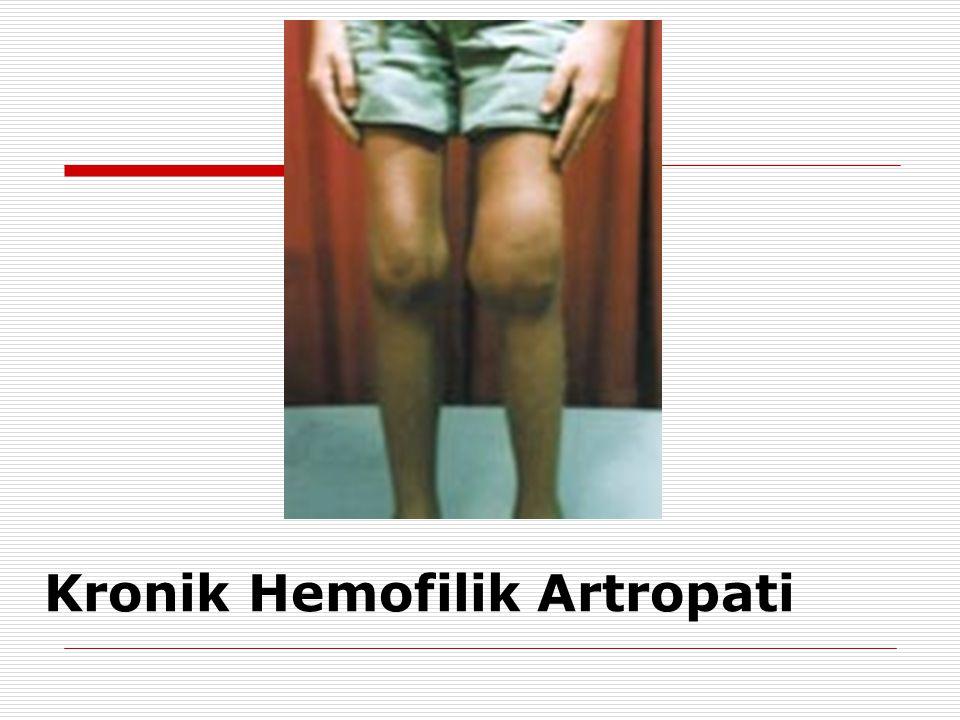 Kronik Hemofilik Artropati