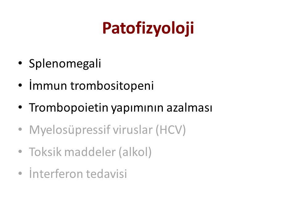 Patofizyoloji Splenomegali İmmun trombositopeni