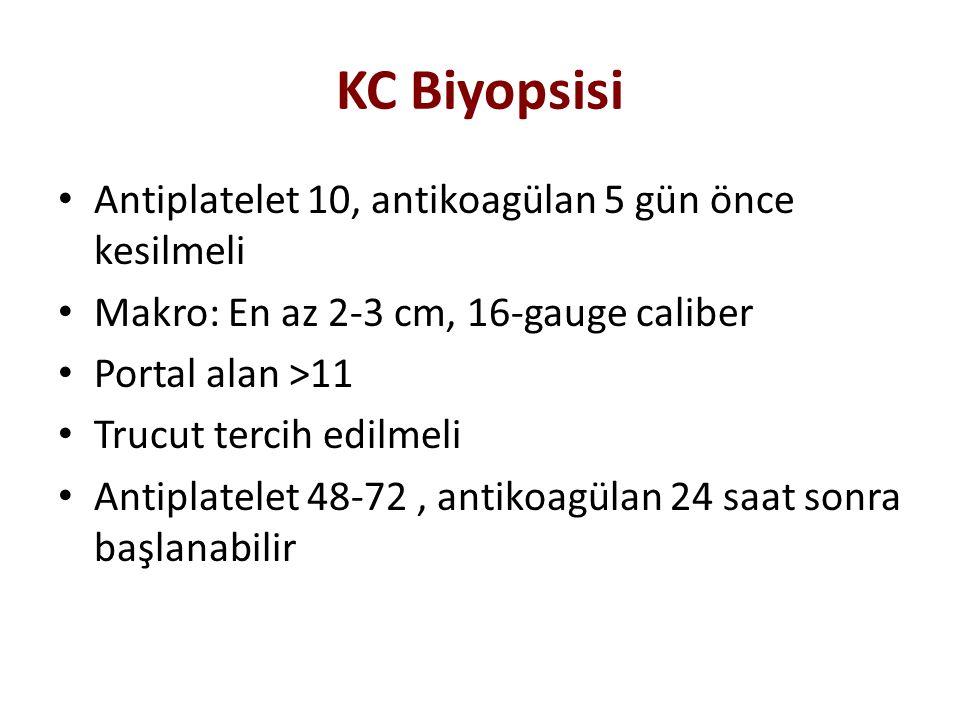 KC Biyopsisi Antiplatelet 10, antikoagülan 5 gün önce kesilmeli