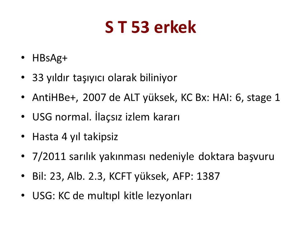 S T 53 erkek HBsAg+ 33 yıldır taşıyıcı olarak biliniyor