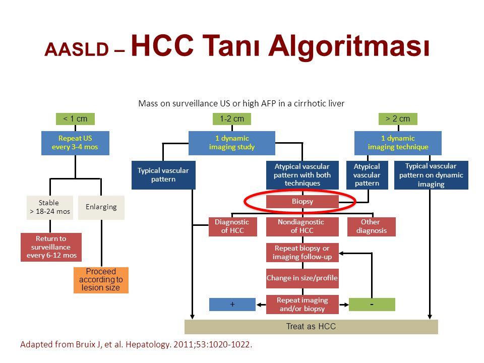 AASLD – HCC Tanı Algoritması