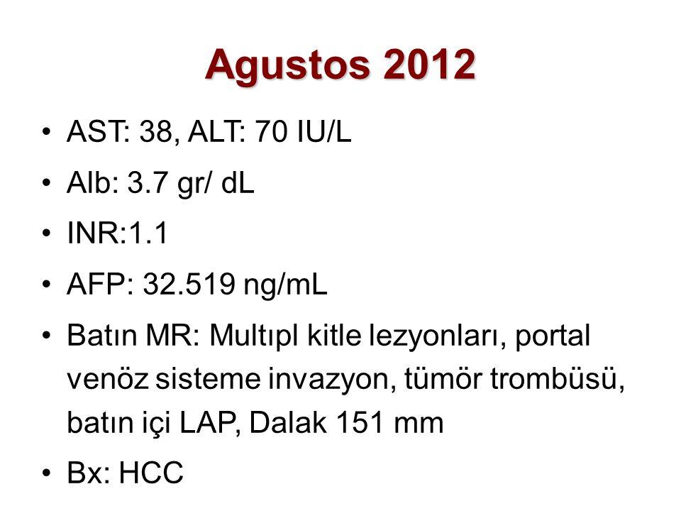 Agustos 2012 AST: 38, ALT: 70 IU/L Alb: 3.7 gr/ dL INR:1.1