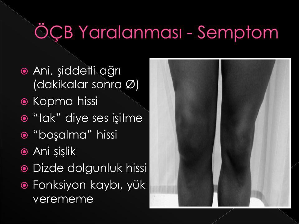 ÖÇB Yaralanması - Semptom