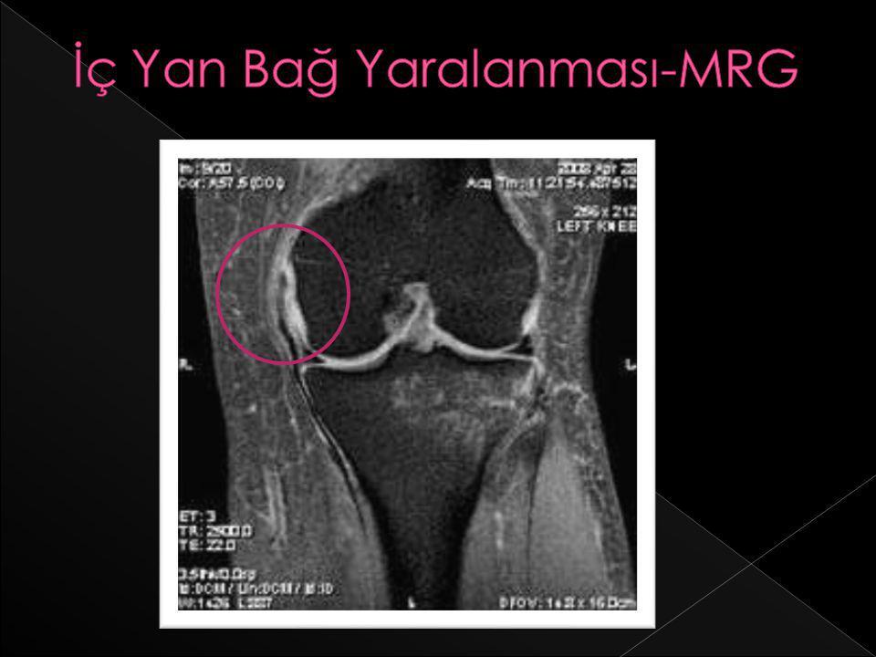 İç Yan Bağ Yaralanması-MRG