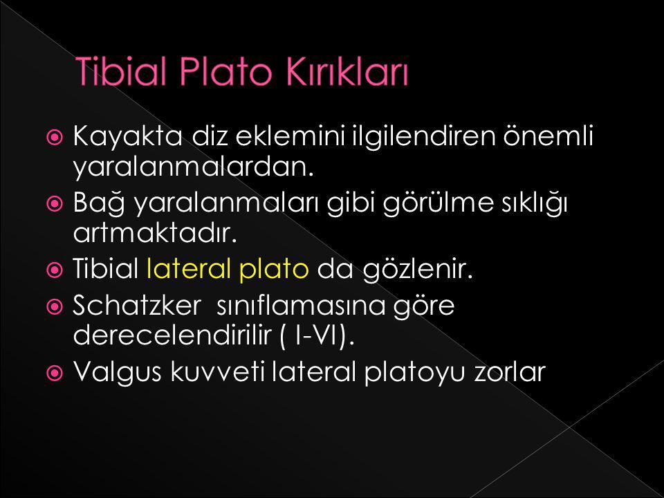 Tibial Plato Kırıkları