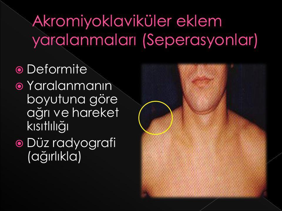 Akromiyoklaviküler eklem yaralanmaları (Seperasyonlar)