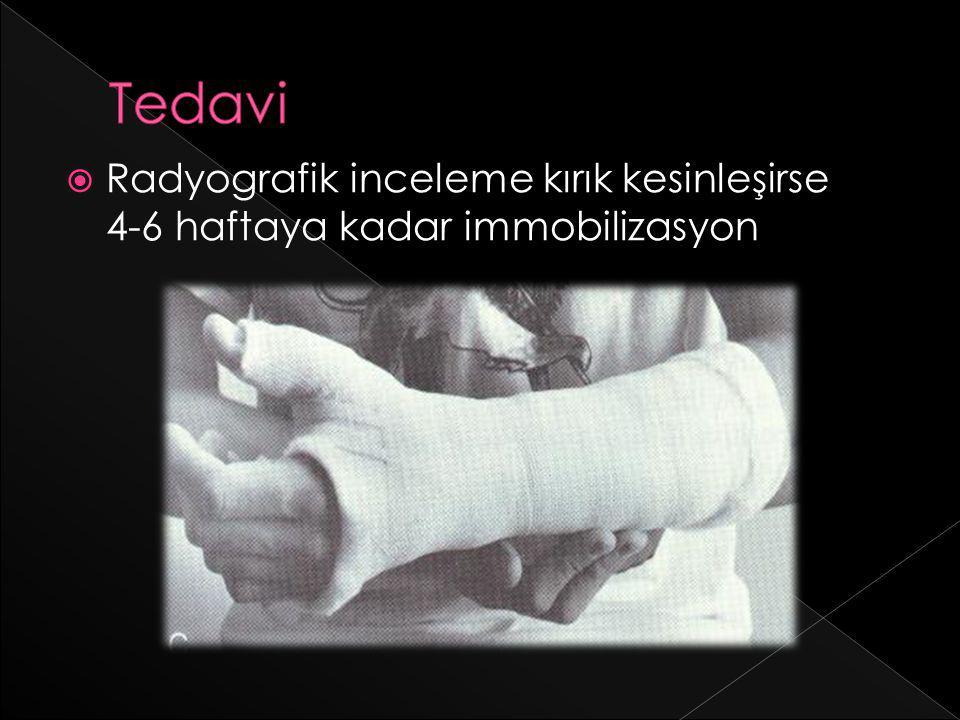 Tedavi Radyografik inceleme kırık kesinleşirse 4-6 haftaya kadar immobilizasyon