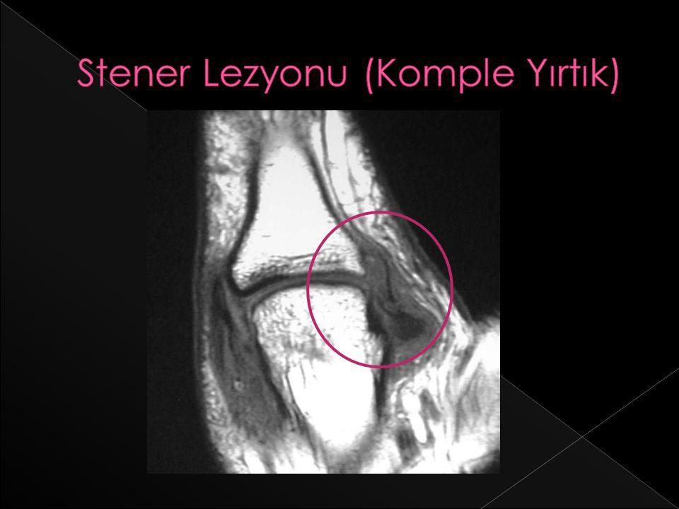 Stener Lezyonu (Komple Yırtık)