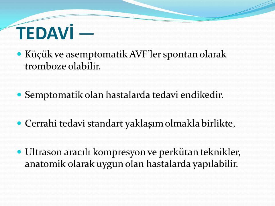 TEDAVİ — Küçük ve asemptomatik AVF'ler spontan olarak tromboze olabilir. Semptomatik olan hastalarda tedavi endikedir.