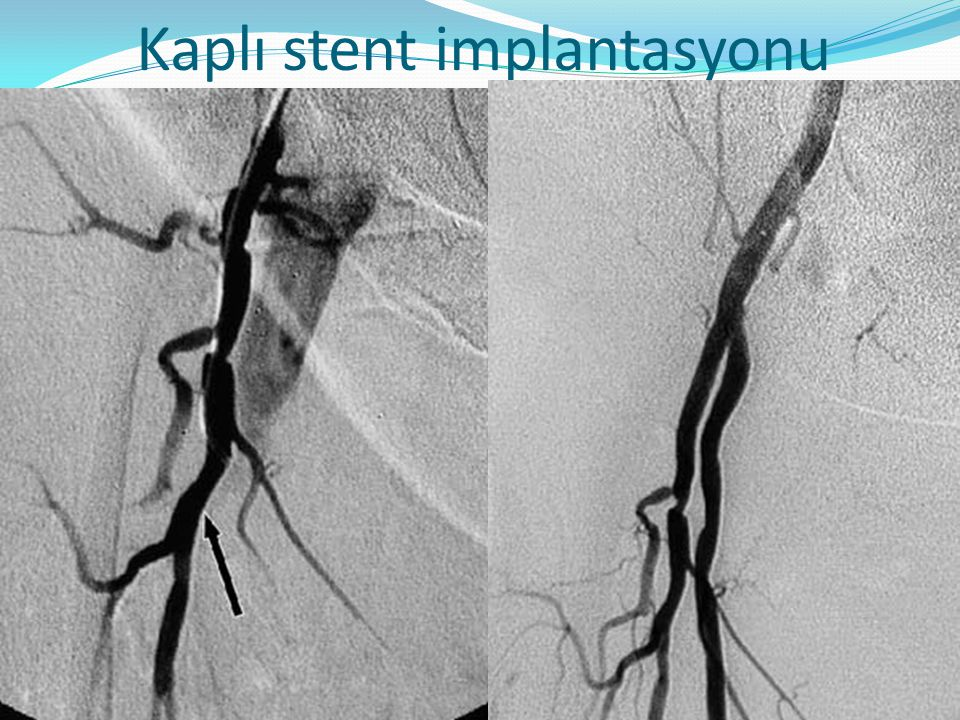Kaplı stent implantasyonu