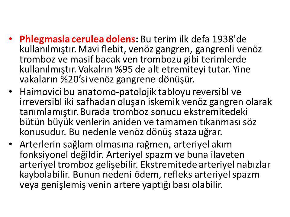 Phlegmasia cerulea dolens: Bu terim ilk defa 1938 de kullanılmıştır