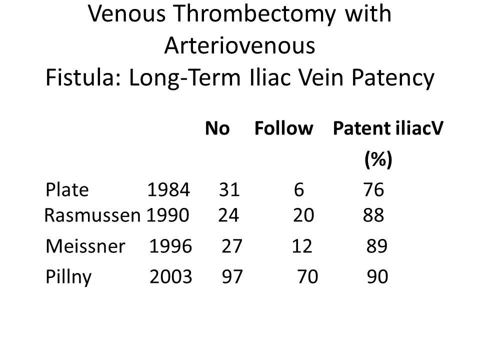 Venous Thrombectomy with Arteriovenous Fistula: Long-Term Iliac Vein Patency