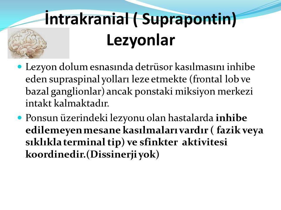 İntrakranial ( Suprapontin) Lezyonlar