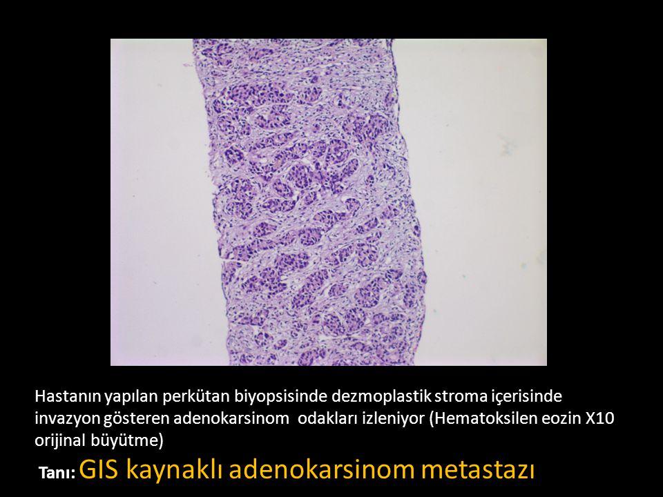 Hastanın yapılan perkütan biyopsisinde dezmoplastik stroma içerisinde invazyon gösteren adenokarsinom odakları izleniyor (Hematoksilen eozin X10 orijinal büyütme)