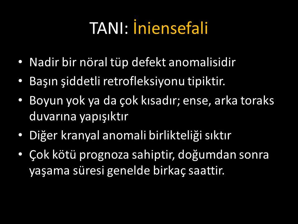 TANI: İniensefali Nadir bir nöral tüp defekt anomalisidir