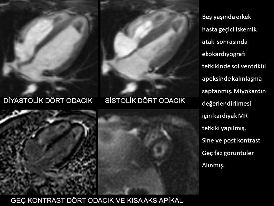 Beş yaşında erkek hasta geçici iskemik. atak sonrasında. ekokardiyografi. tetkikinde sol ventrikül.