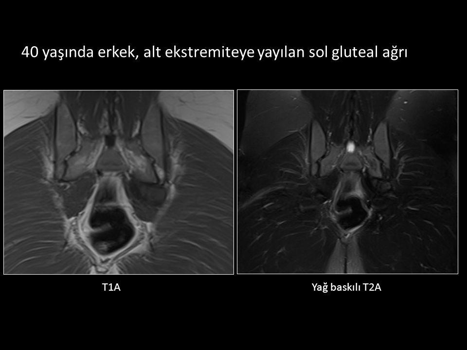 40 yaşında erkek, alt ekstremiteye yayılan sol gluteal ağrı