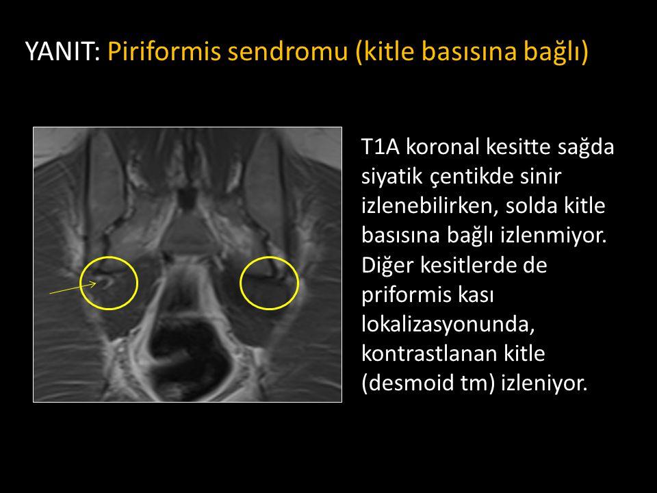 YANIT: Piriformis sendromu (kitle basısına bağlı)