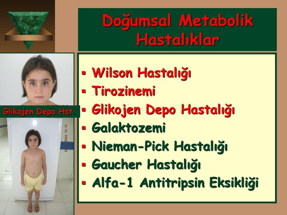Doğumsal Metabolik Hastalıklar