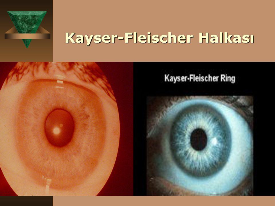 Kayser-Fleischer Halkası