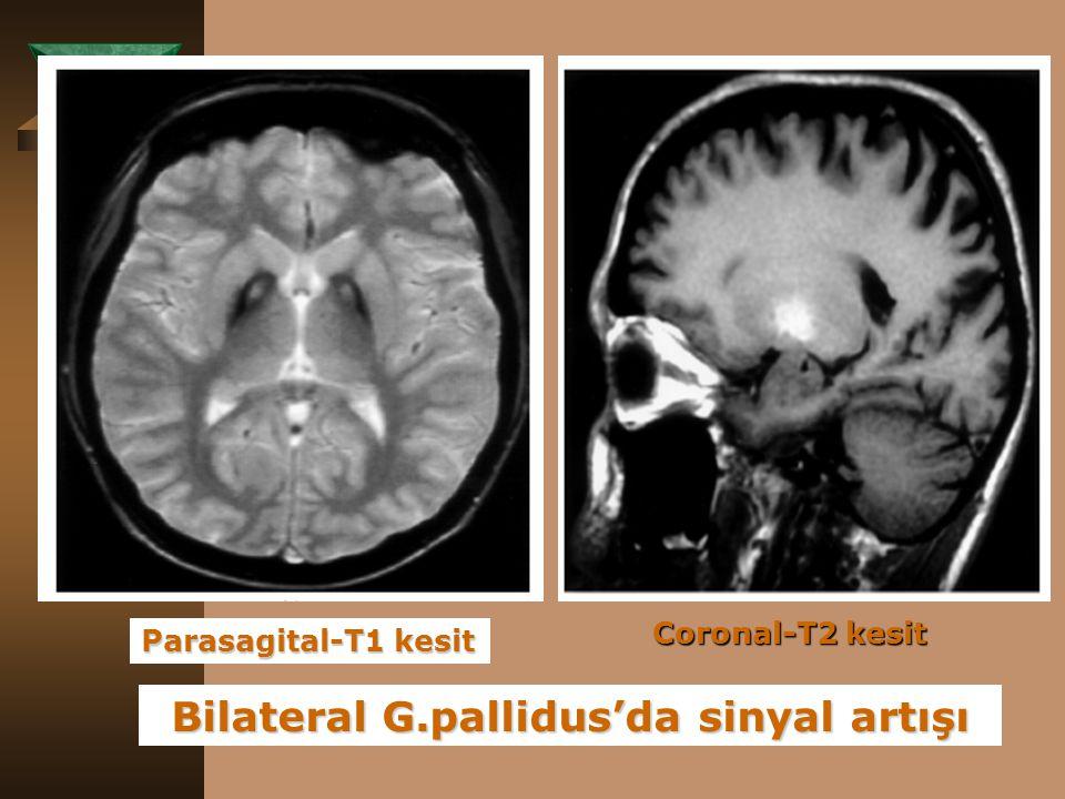 Bilateral G.pallidus'da sinyal artışı