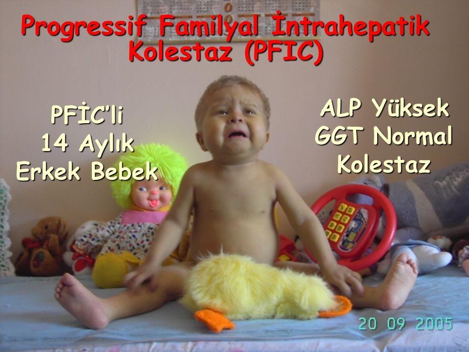 Progressif Familyal İntrahepatik Kolestaz (PFIC)