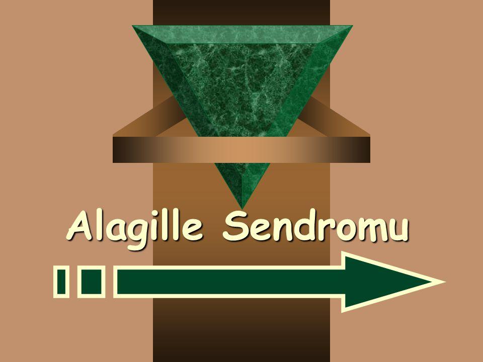 Alagille Sendromu