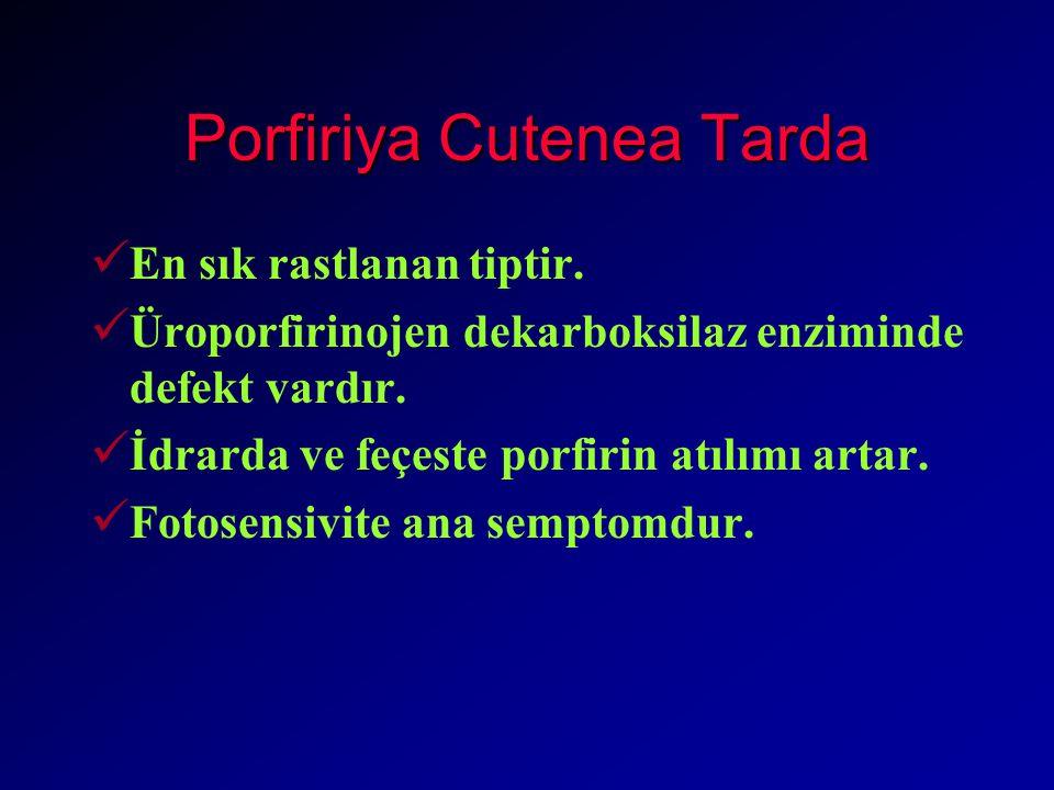 Porfiriya Cutenea Tarda