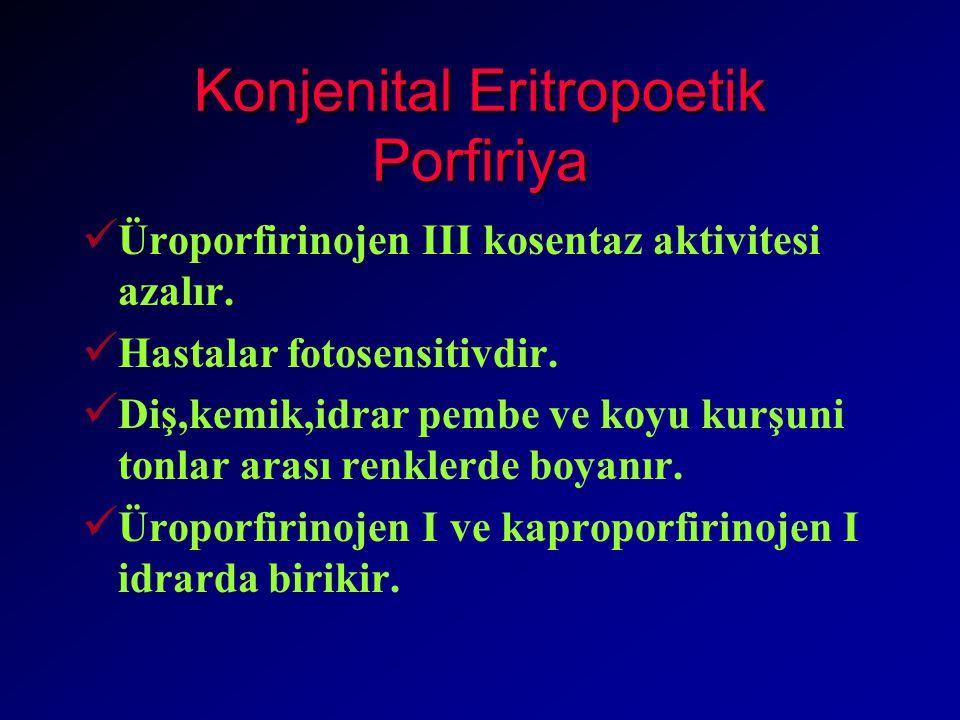 Konjenital Eritropoetik Porfiriya