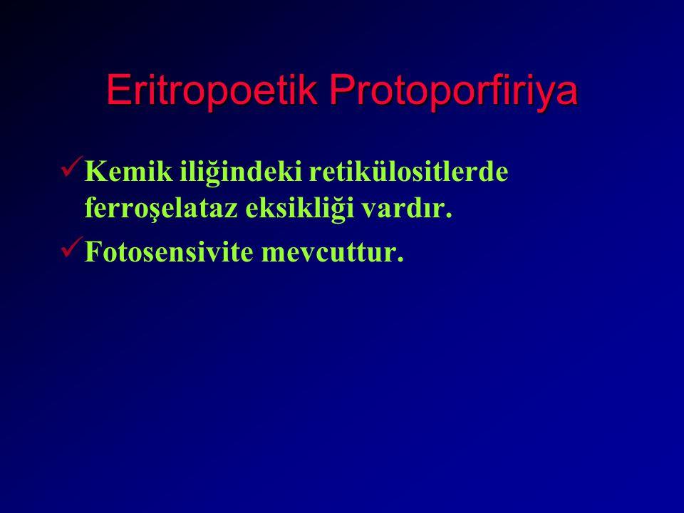 Eritropoetik Protoporfiriya