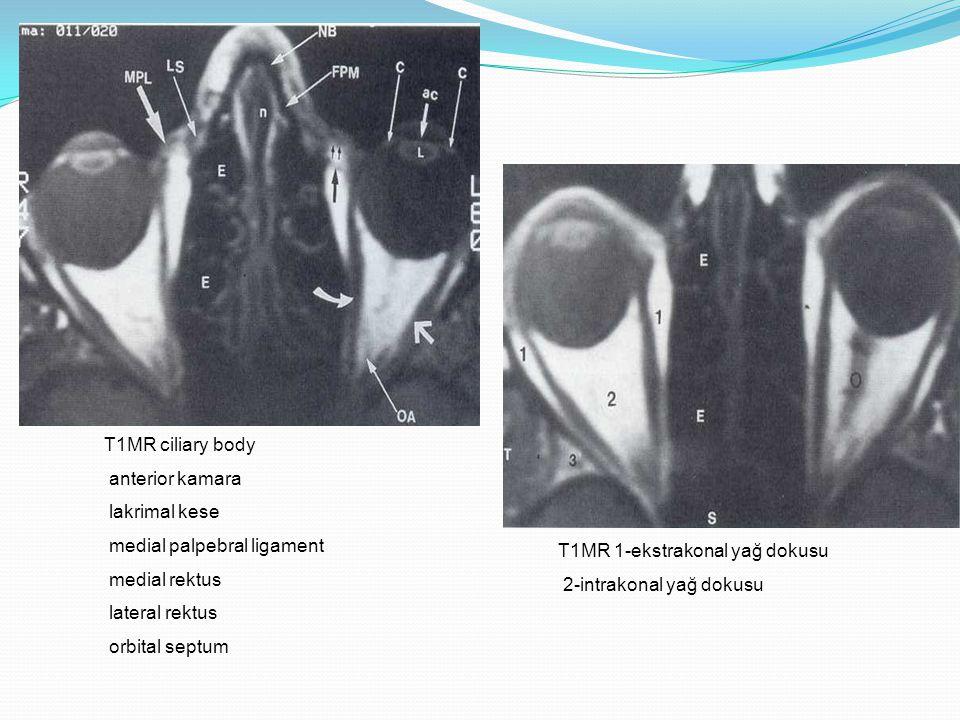 T1MR ciliary body anterior kamara. lakrimal kese. medial palpebral ligament. medial rektus. lateral rektus.