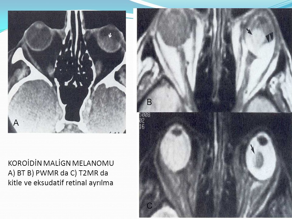 B A KOROİDİN MALİGN MELANOMU A) BT B) PWMR da C) T2MR da kitle ve eksudatif retinal ayrılma C