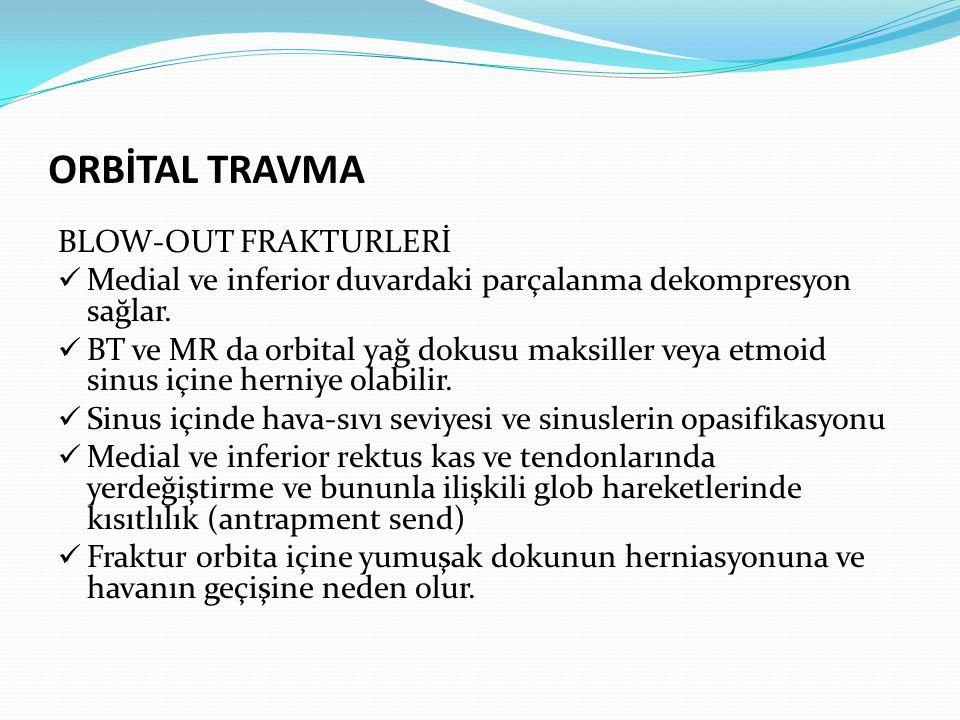 ORBİTAL TRAVMA BLOW-OUT FRAKTURLERİ