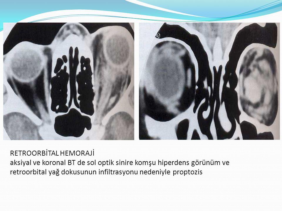 RETROORBİTAL HEMORAJİ aksiyal ve koronal BT de sol optik sinire komşu hiperdens görünüm ve retroorbital yağ dokusunun infiltrasyonu nedeniyle proptozis
