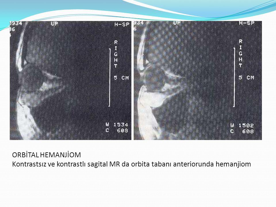 ORBİTAL HEMANJİOM Kontrastsız ve kontrastlı sagital MR da orbita tabanı anteriorunda hemanjiom