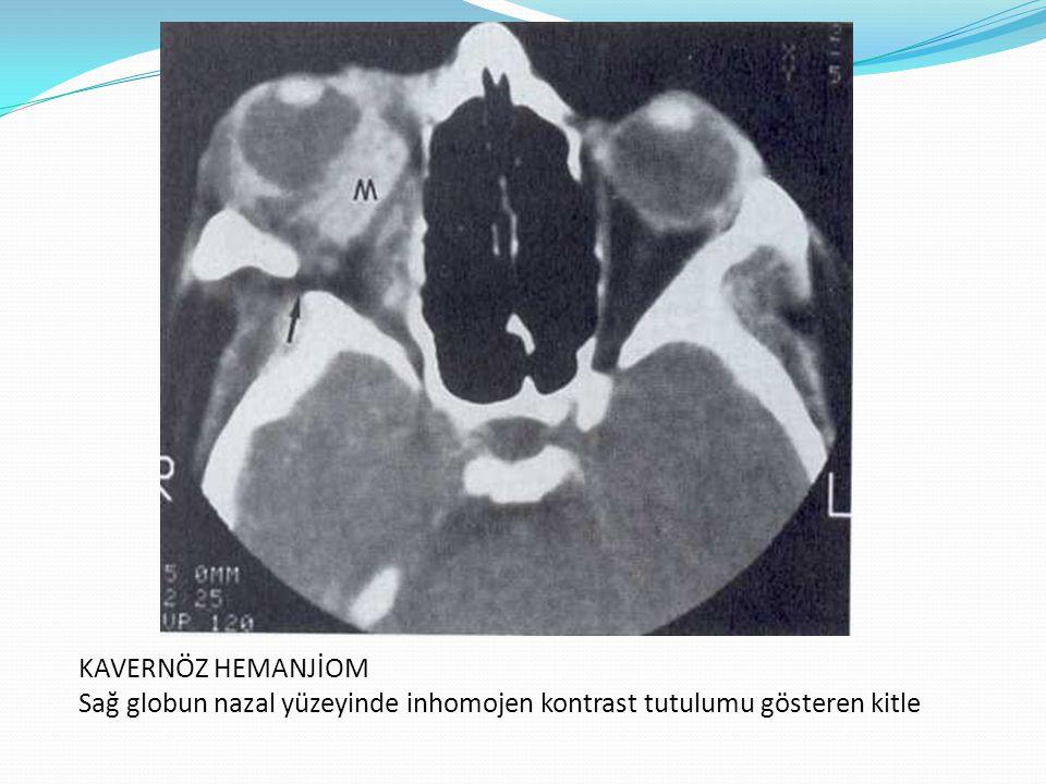 KAVERNÖZ HEMANJİOM Sağ globun nazal yüzeyinde inhomojen kontrast tutulumu gösteren kitle
