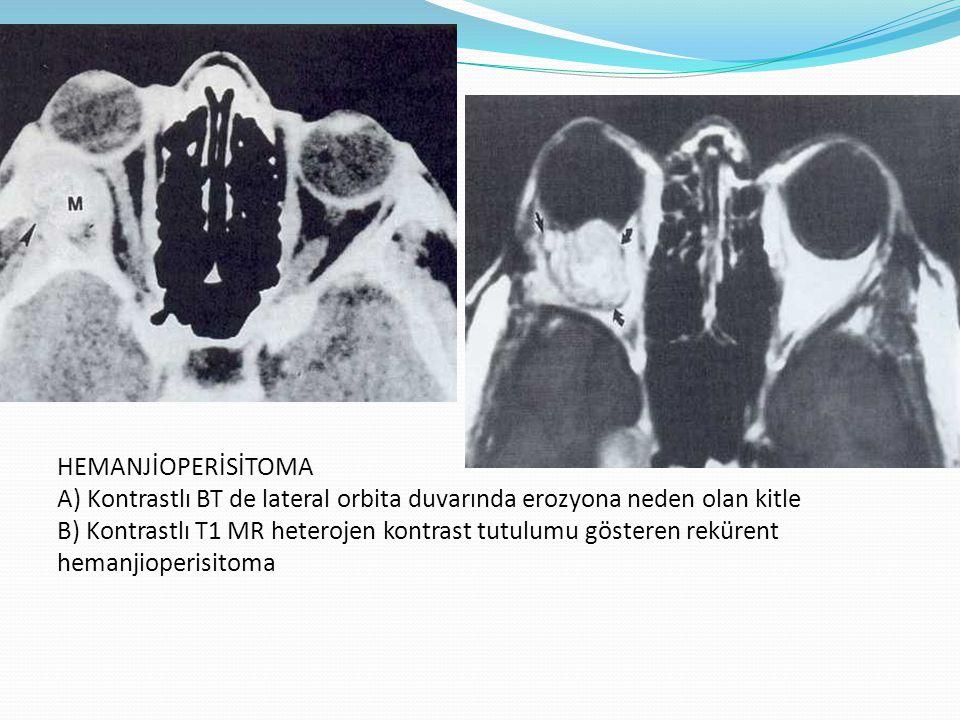 HEMANJİOPERİSİTOMA A) Kontrastlı BT de lateral orbita duvarında erozyona neden olan kitle B) Kontrastlı T1 MR heterojen kontrast tutulumu gösteren rekürent hemanjioperisitoma