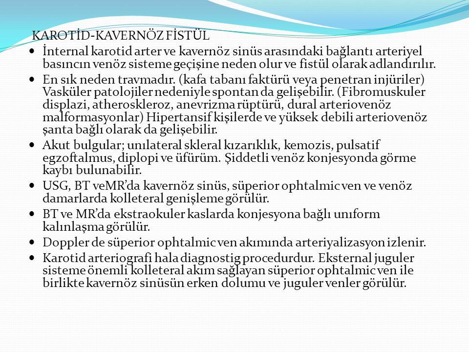 KAROTİD-KAVERNÖZ FİSTÜL