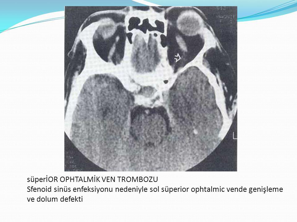 süperİOR OPHTALMİK VEN TROMBOZU Sfenoid sinüs enfeksiyonu nedeniyle sol süperior ophtalmic vende genişleme ve dolum defekti