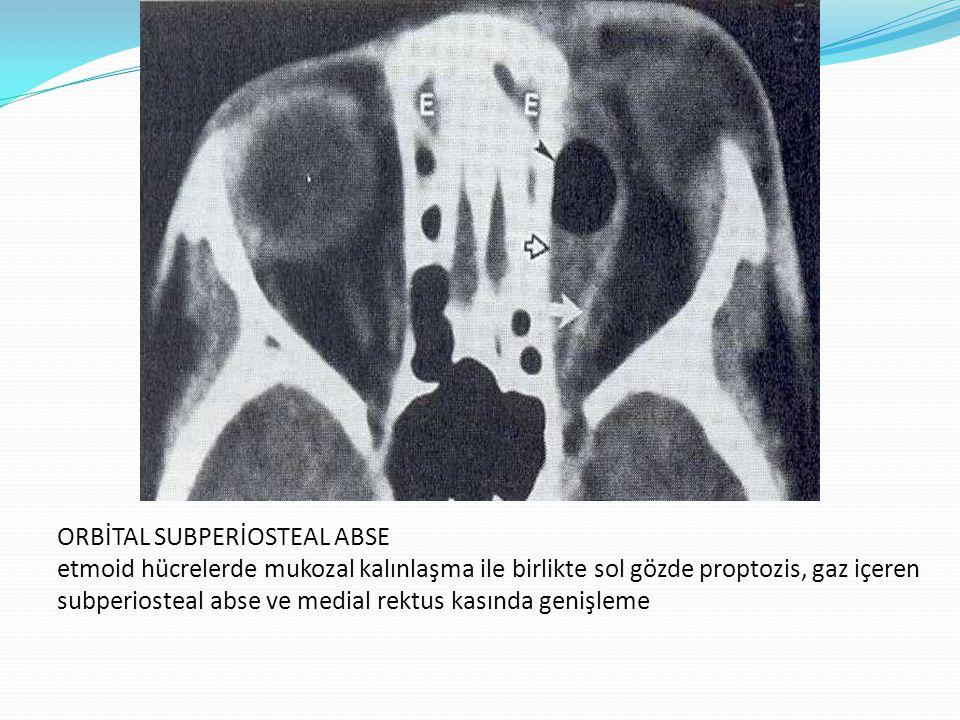 ORBİTAL SUBPERİOSTEAL ABSE etmoid hücrelerde mukozal kalınlaşma ile birlikte sol gözde proptozis, gaz içeren subperiosteal abse ve medial rektus kasında genişleme