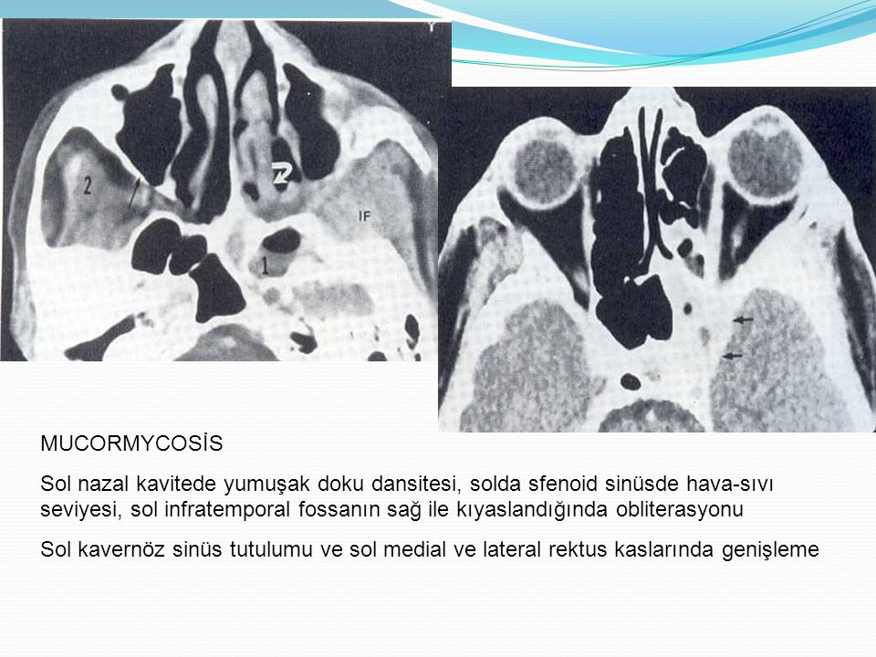 MUCORMYCOSİS