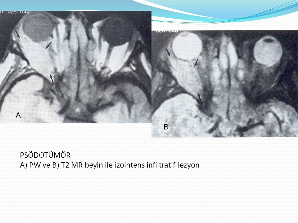 PSÖDOTÜMÖR A) PW ve B) T2 MR beyin ile izointens infiltratif lezyon