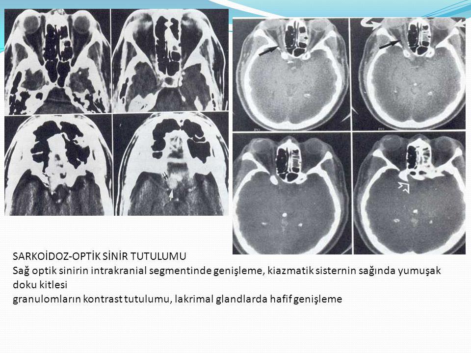 SARKOİDOZ-OPTİK SİNİR TUTULUMU Sağ optik sinirin intrakranial segmentinde genişleme, kiazmatik sisternin sağında yumuşak doku kitlesi granulomların kontrast tutulumu, lakrimal glandlarda hafif genişleme
