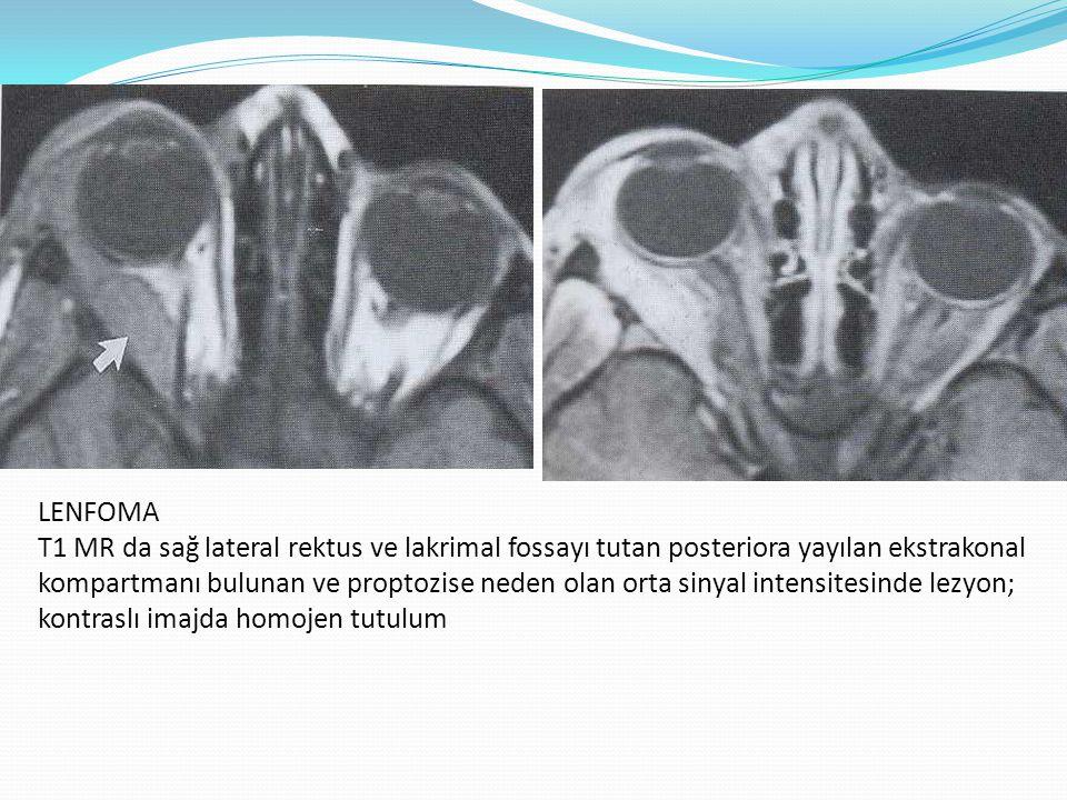 LENFOMA T1 MR da sağ lateral rektus ve lakrimal fossayı tutan posteriora yayılan ekstrakonal kompartmanı bulunan ve proptozise neden olan orta sinyal intensitesinde lezyon; kontraslı imajda homojen tutulum