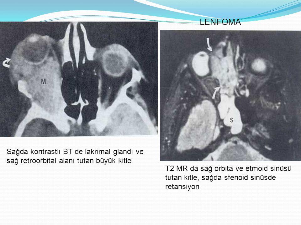 LENFOMA Sağda kontrastlı BT de lakrimal glandı ve sağ retroorbital alanı tutan büyük kitle.