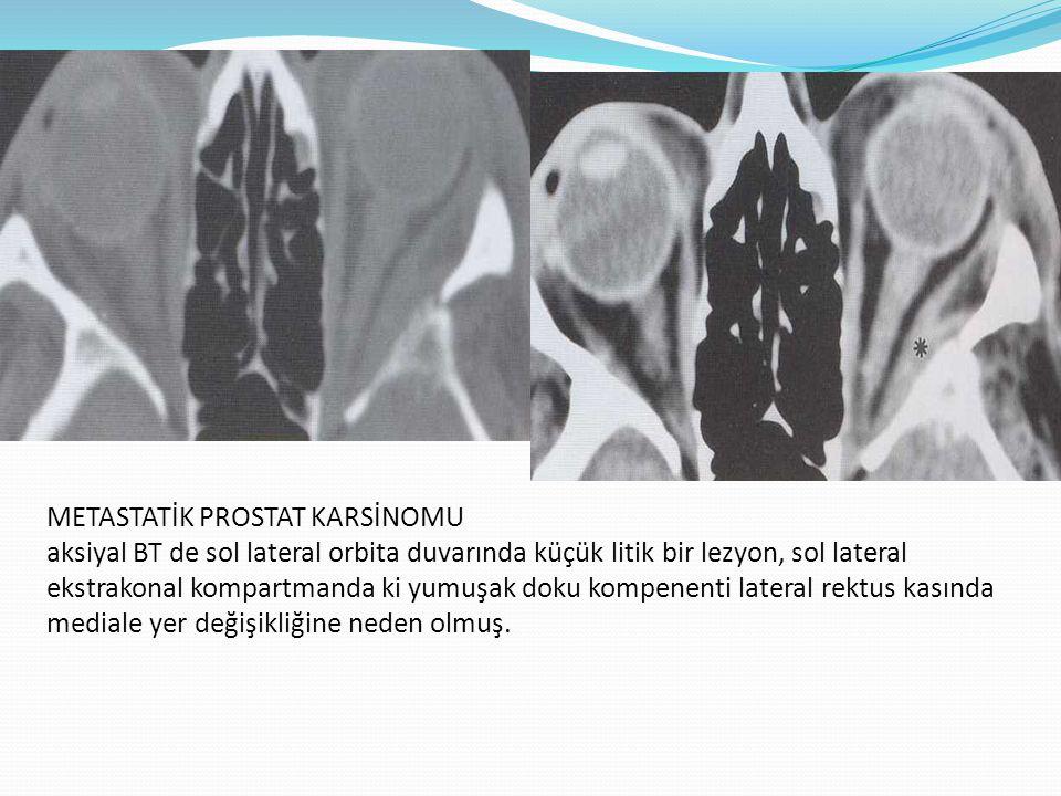 METASTATİK PROSTAT KARSİNOMU aksiyal BT de sol lateral orbita duvarında küçük litik bir lezyon, sol lateral ekstrakonal kompartmanda ki yumuşak doku kompenenti lateral rektus kasında mediale yer değişikliğine neden olmuş.