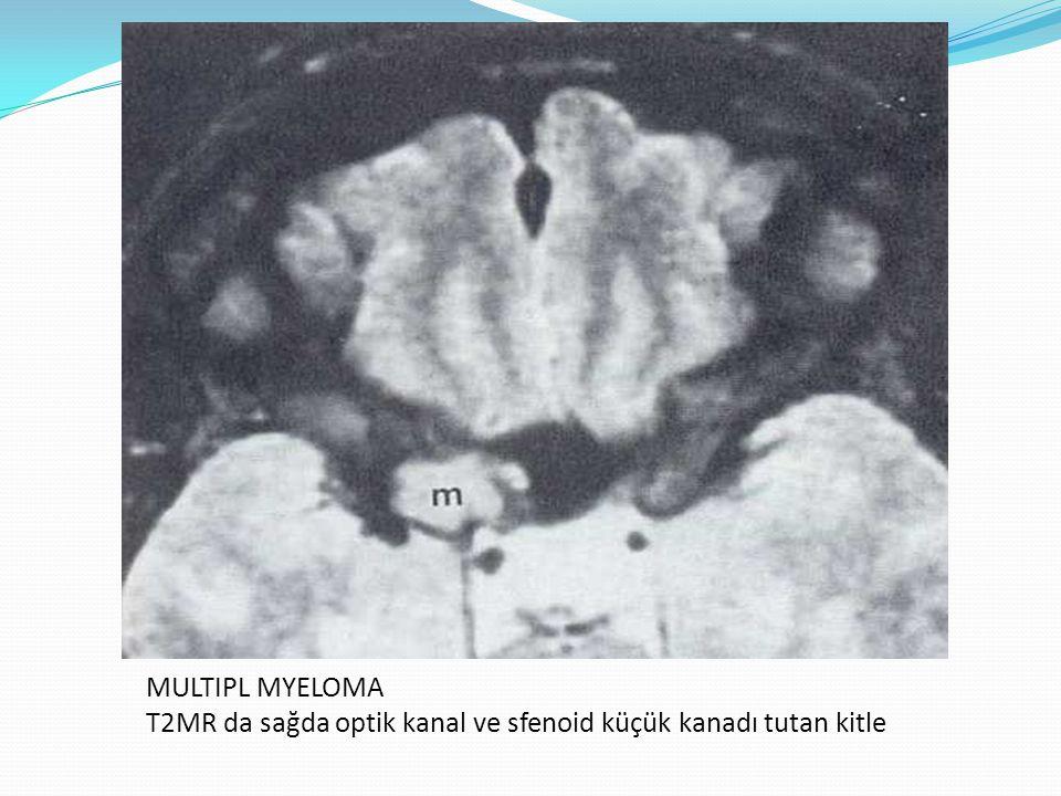 MULTIPL MYELOMA T2MR da sağda optik kanal ve sfenoid küçük kanadı tutan kitle
