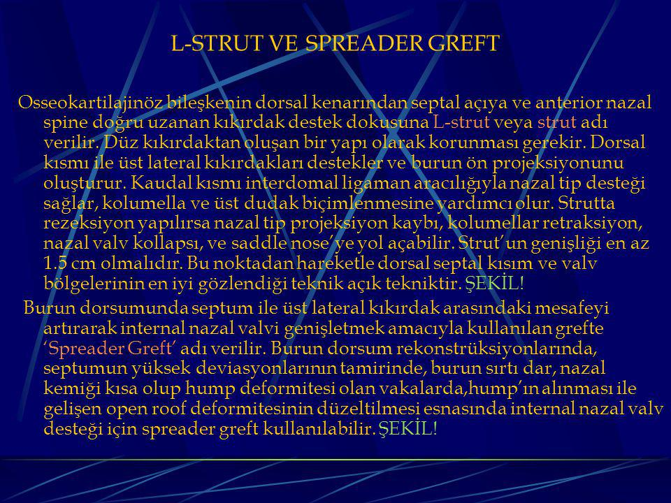 L-STRUT VE SPREADER GREFT